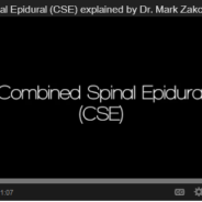 Combined Spinal Epidural (CSE)